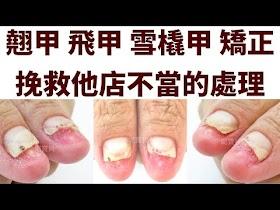 翹甲 飛甲 雪翹甲 矯正 挽救他店不當的處理 - 指甲往上長的指甲形狀矯正