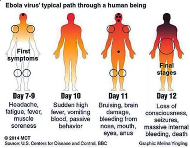 Image result for ebola symptoms