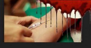 Trasfusioni sangue infetto