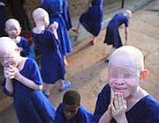 Albinismo: in Africa, una condizione difficile