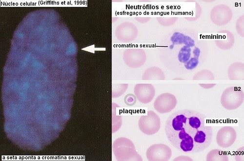 Cromatina sexual em núcleos