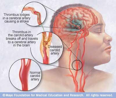 Nursing Assessment for Stroke