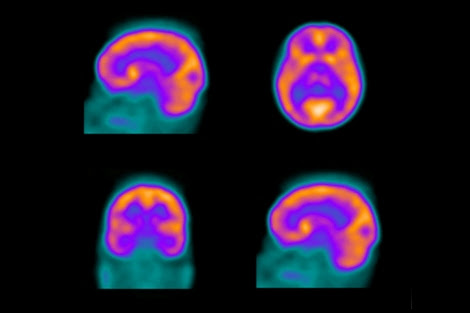 Distinguishing Between Dementia and Depression with ...