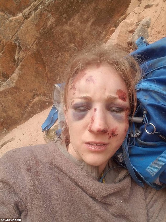 Survivor: Amber Kohnhorst, an experienced hiker, lost her footing trying to get down a cliff in Arizona on May 20 and fell 100 feet onto a ledge. She took this photo of herself while waiting to be rescued