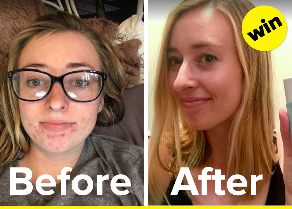 skincare products great before and after