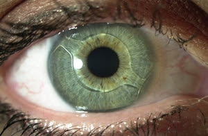 Восстановление зрения после операции на катаракте Клиника