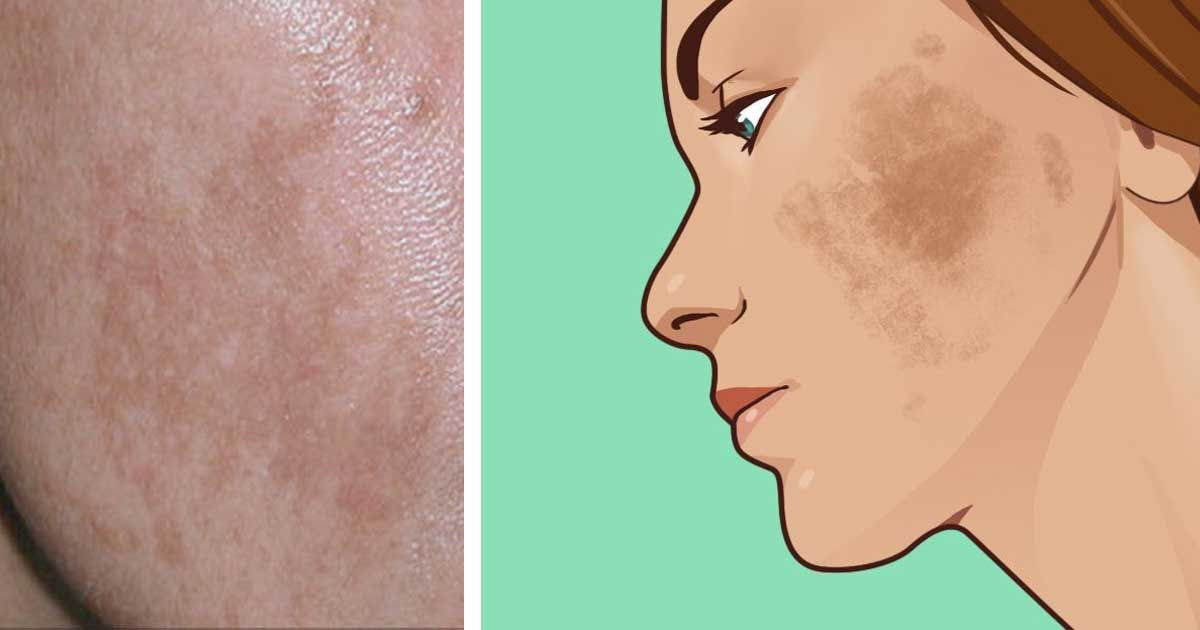 Suffer from melasma? Here are 6 natural ways to treat the ...
