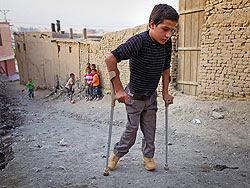 Polio Tadzsikisztánban