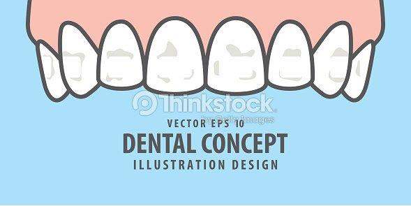 青の背景に歯イラストのバナー上部の白い斑点歯科のコンセプトです