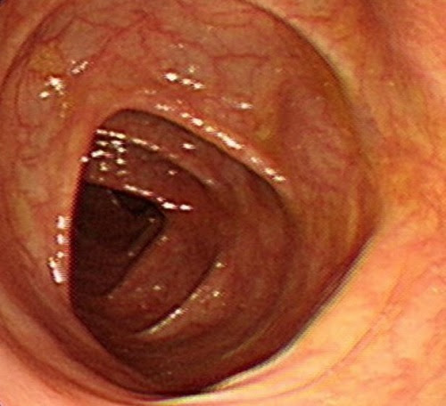 My Colon