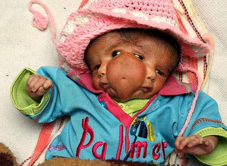 2face-girl 2 Faced Baby Born in India picture