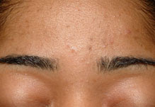 Treating Acne Vulgaris - Skin Problems - The Authority for ...