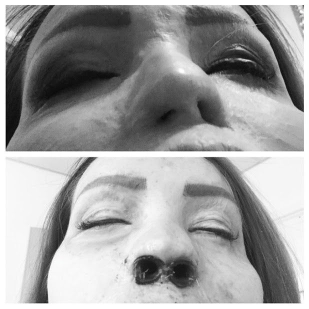 Katie Piper has operation on her nostrils, 20 August 2015