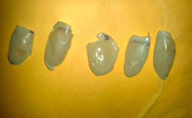 Dedos de silicone apreendidos com a funcionária têm marcados as impressões digitais dos alunos (Foto: Inácio Rodrigues/Delegado de Pau dos Ferros)