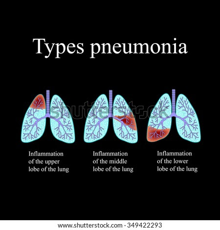 stock photo pneumonia the anatomical structure of the human lung type of pneumonia illustration on a black 349422293