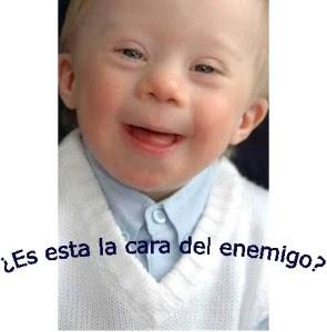 Discriminación del niño con sídrome de Down en el vientre de su madre - diagnóstico prenatal al servico de la  eugenesia postnazi