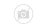 Pictures of Acute Pain Behind The Knee