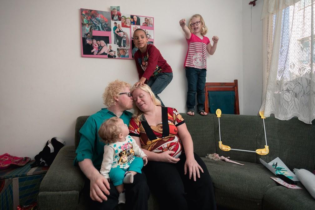 Família sem barreiras: Fernanda e Flávio têm duas filhas albinas e um moreno; na casa deles, todos são tratados com igualdade (Foto: Marcelo Brandt/G1)