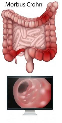 Morbus Crohn (entzündliche Darmerkrankung) - Ursache ...