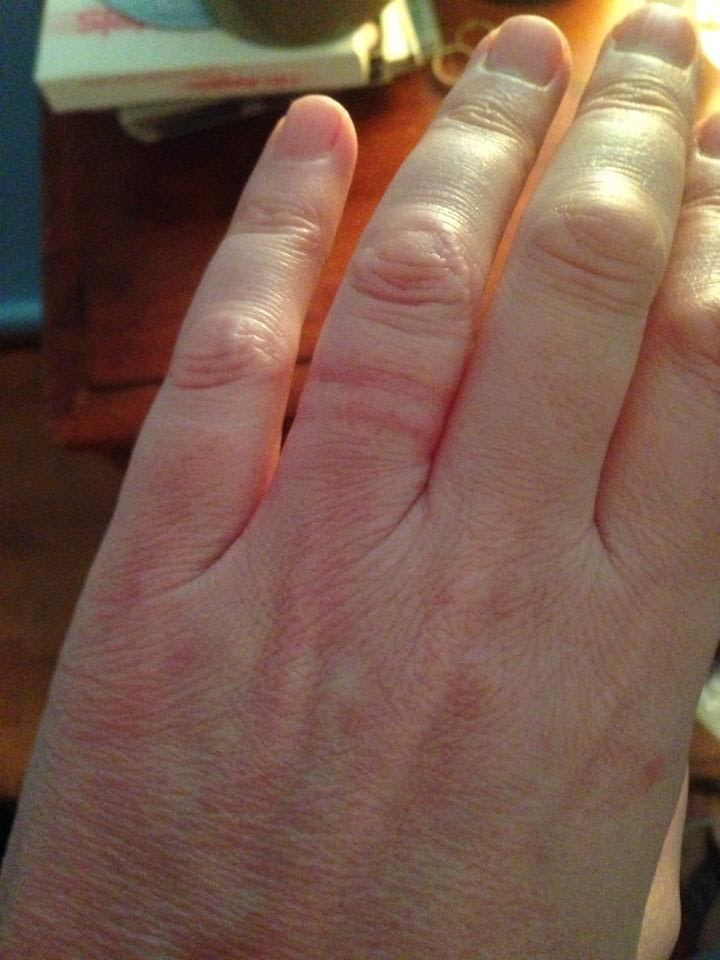 Wedding ring tight on finger