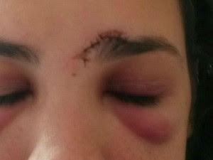 Mulher levou oito pontos após corte e ficou com olhos roxos (Foto: Arquivo pessoal)