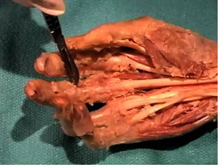 Picture from Anatomy Dissection 12 - Forearm and Hand video