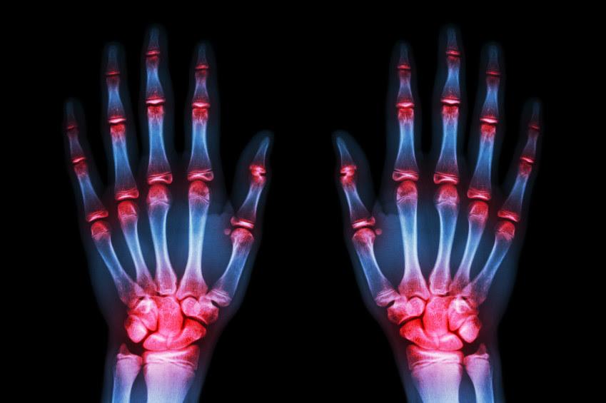 Resultado de imagen de artritis