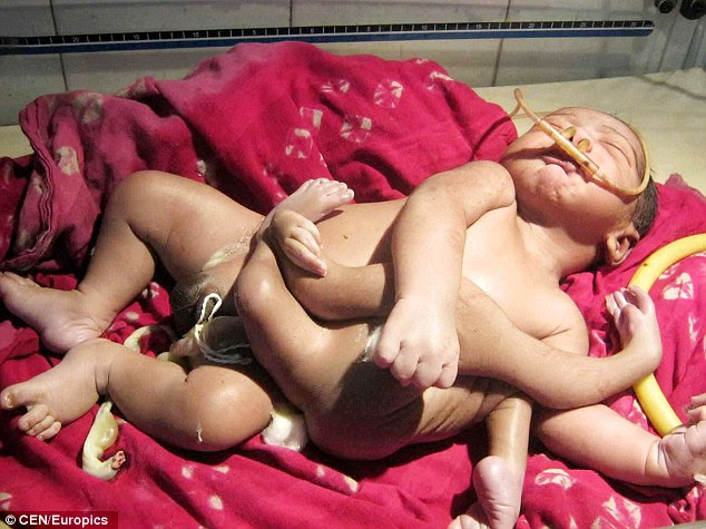 God Baby: A baby boy born with four arms and four legs is causing panic in the streets of Baruipur, east India, as locals believe he is the reincarnation of a Hindu god
