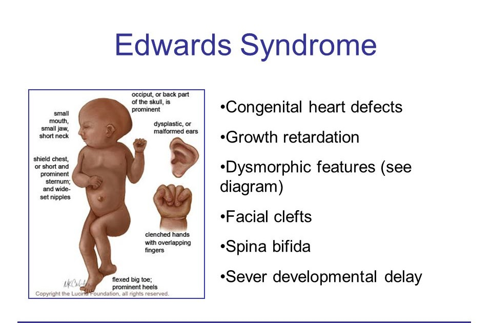 Edwards Syndrome Symptoms