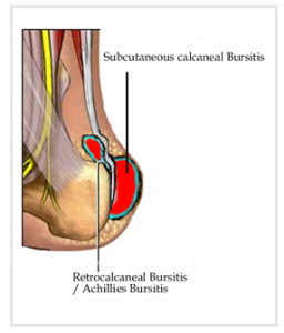 Case discussion on Subcutaneous Calcaneal Bursitis