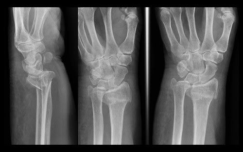 Typical 'Colles fracture', distal radial metaphysis, wrist, XR