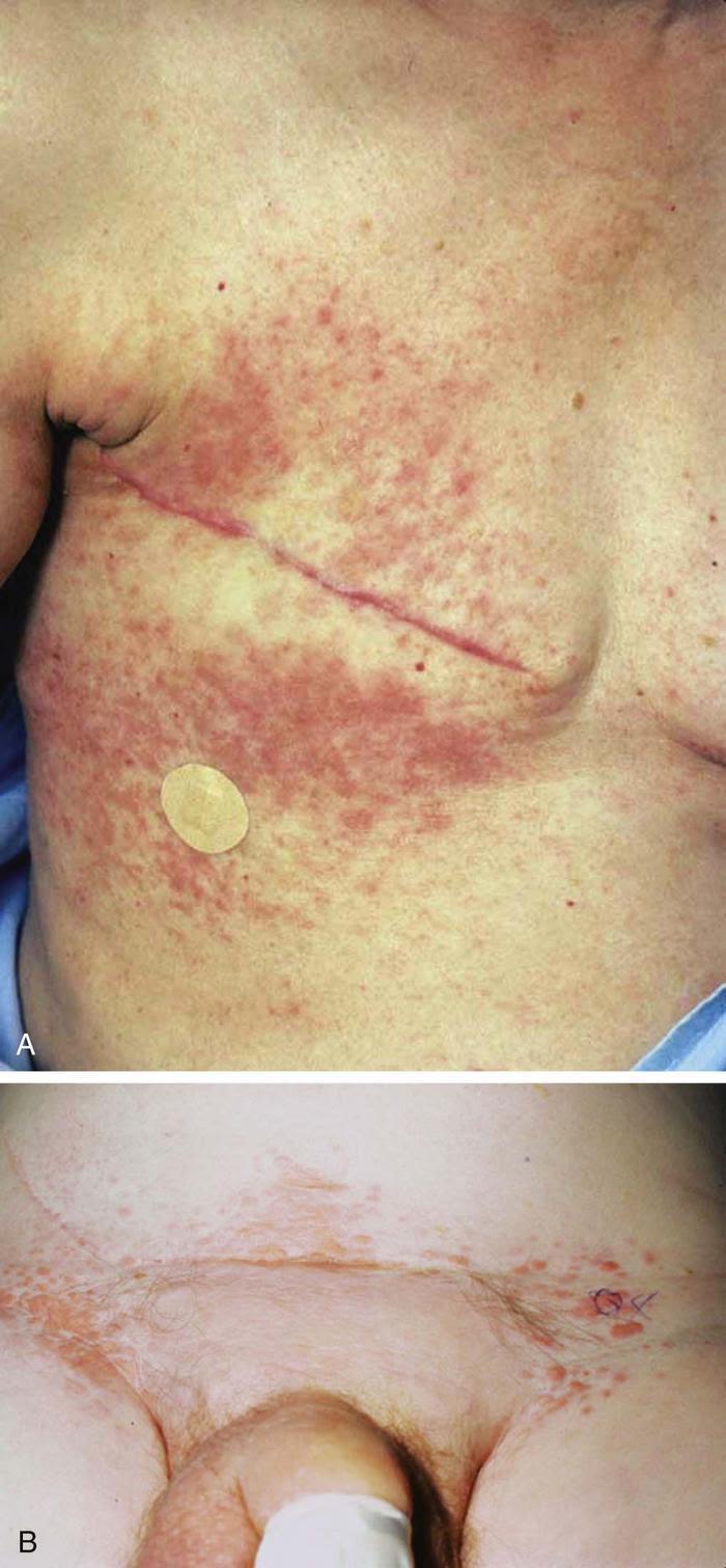 Kidney Disease Yellow Skin Kidney Failure Disease