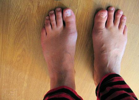 happy feet :: glade føtter