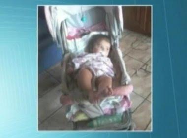 Bebê de oito meses morre após ser mordido por pitbull no Pará