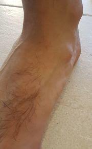 kaki ganglion