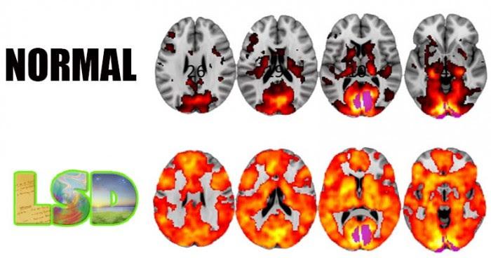 lsd-brain-2-700x368