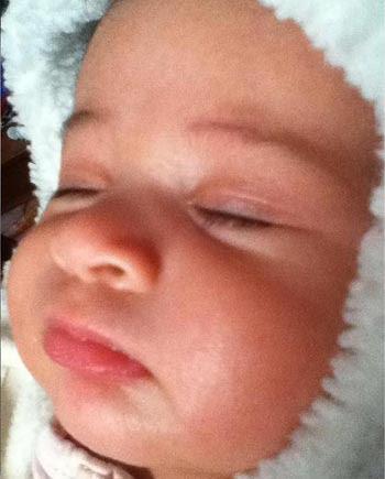 Newborn Baby Acne On Face Newborn Baby