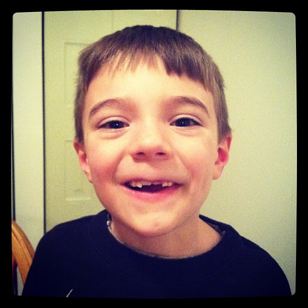 The toothless wonder!