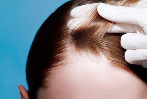 9 cause che possono portare alla caduta dei capelli nelle donne - caduta capelli donne cause e rimedi