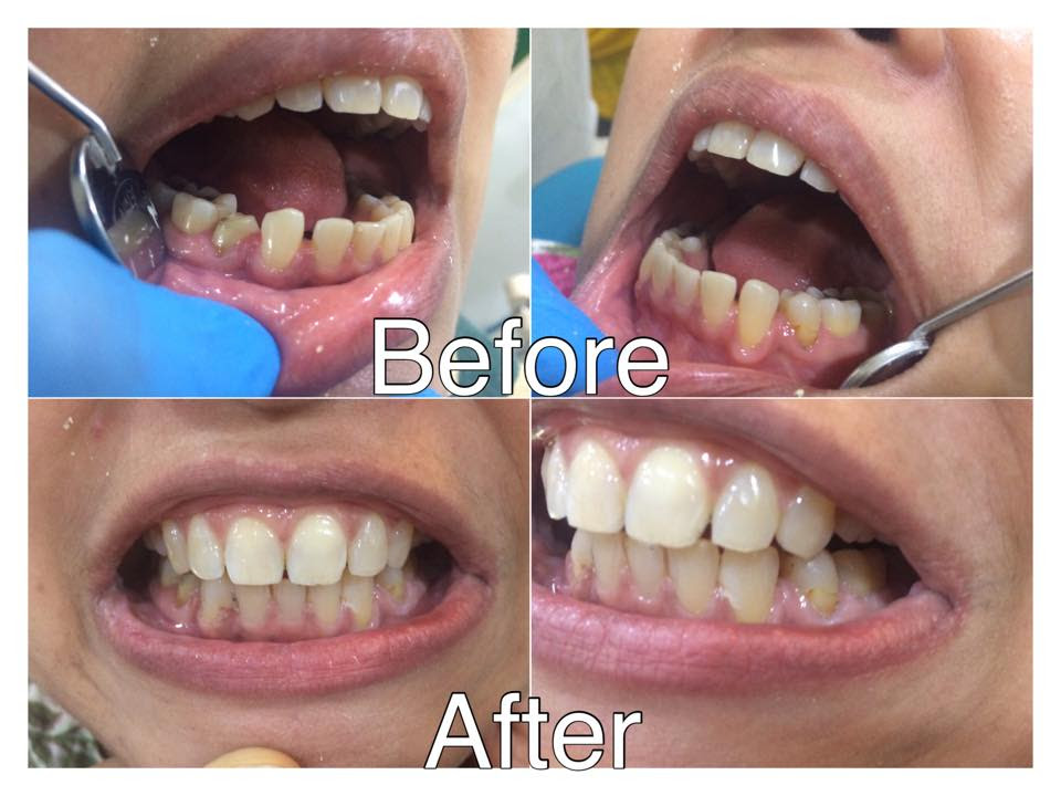 Best Implant Clinic in Ahmedabad