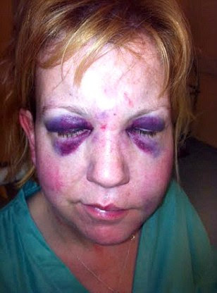 Julie Mannion, 45, was having a cigarette outside North Manchester General Hospital when she claims a security guard punched her in the face