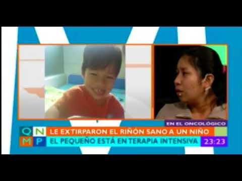 """Bolivia: Extirpan riñón sano a un niño en cirugía por """"equivocación"""""""