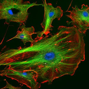 Bovine endothelial cells with the nucleus stained blue and microtubles and actin filaments stained red and green, respectively. (Photo credit: Wikipedia)