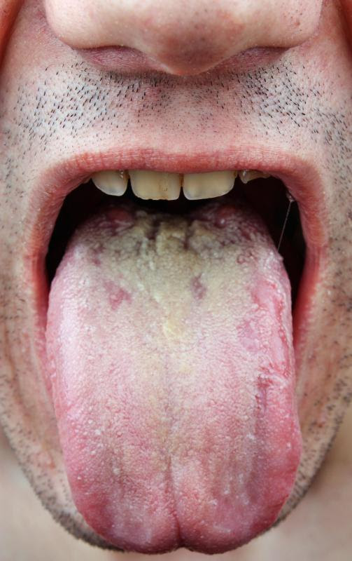 mans tongue with thrush
