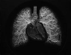 Vasos pulmonares de cristal
