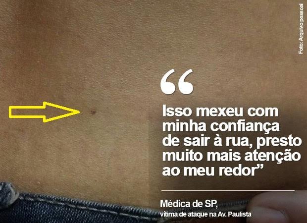 Médica foi agredida com agulhada quando andava perto da Av. Paulista, em SP (Foto: Arquivo pessoal)