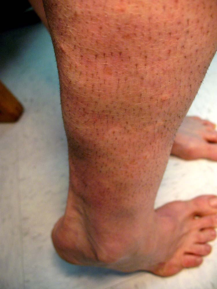 Photo Quiz Unusual Lumps To The Lower Leg With Fat Atrophy Of The Ankle The Foot And Ankle Online Journal