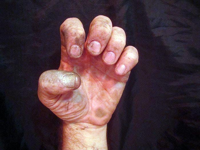 Damaged Hand