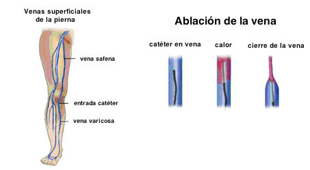 Endovasculares