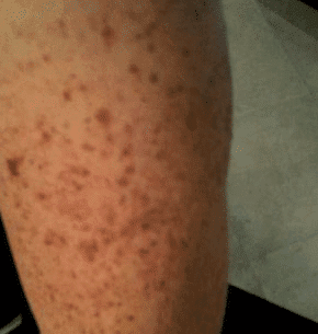 Brown Spots on Skin, Causes, Pictures, Patches, on Chest ...